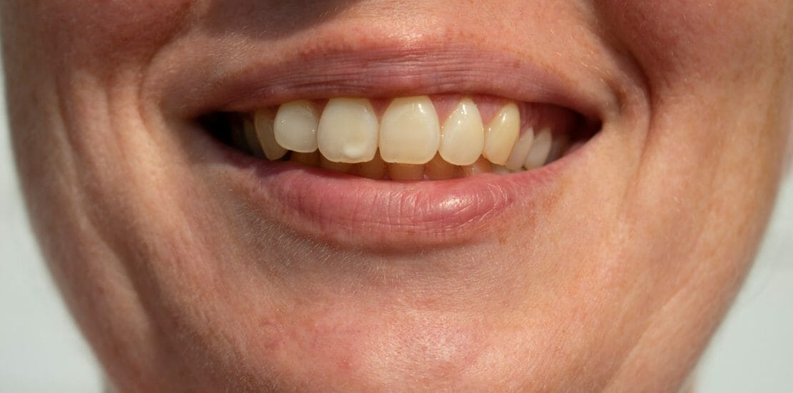 White spot on tooth