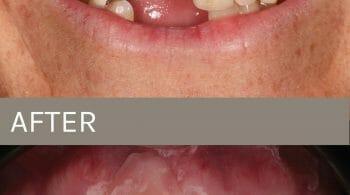 before after dental bridge