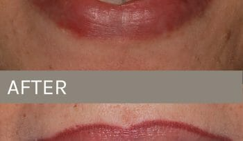 before after dentures
