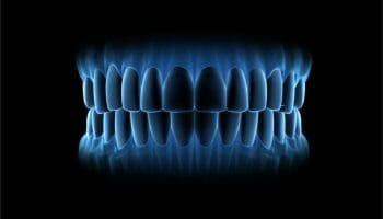 digital impression of teeth