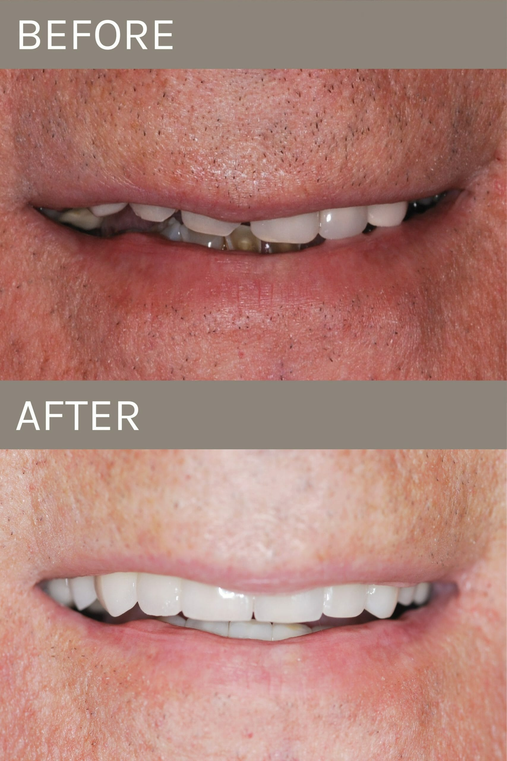before after full mouth restoration