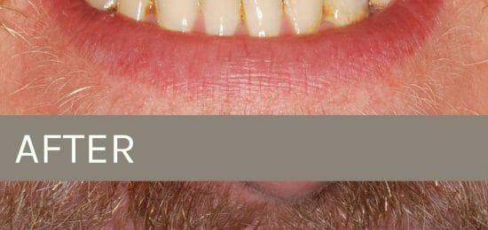 before after hybrid dentures