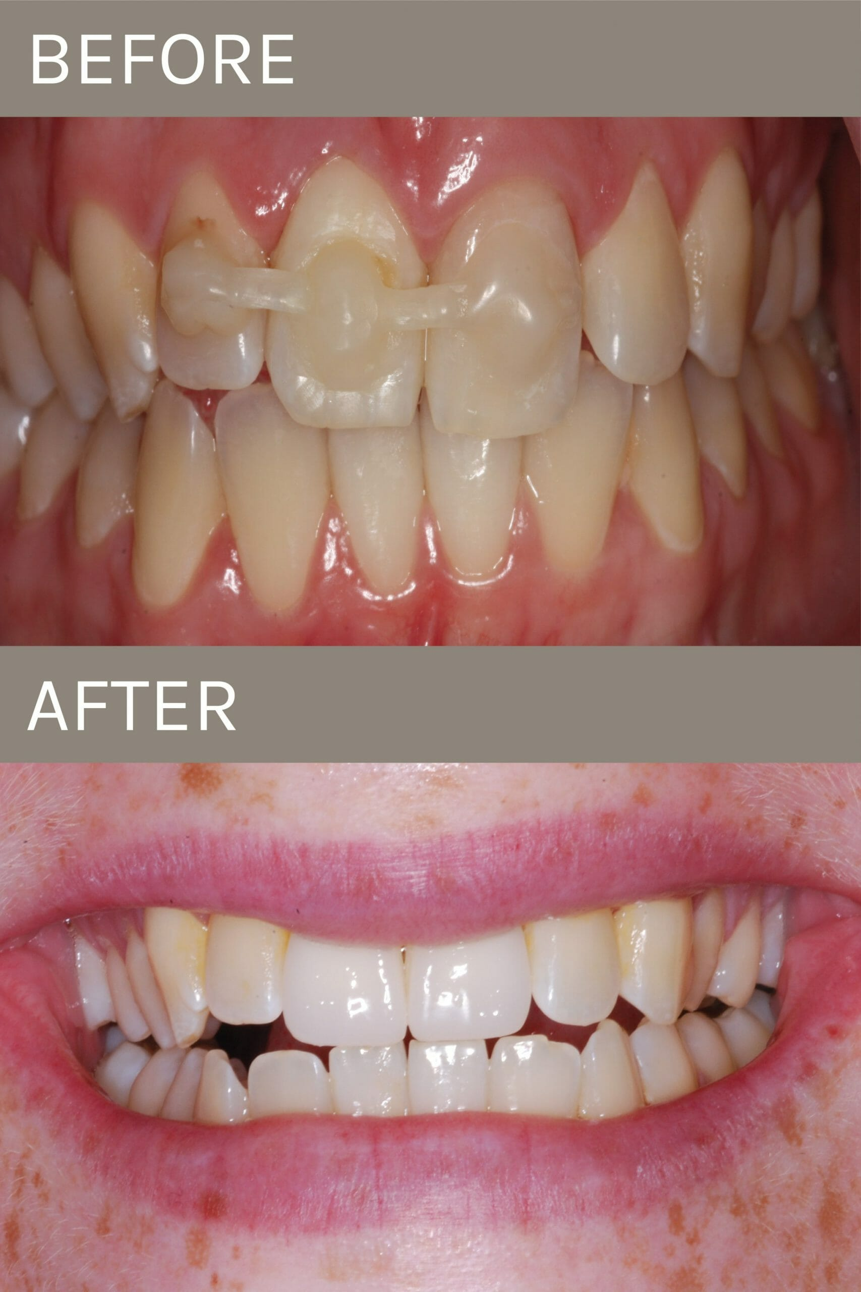 before after implant crown
